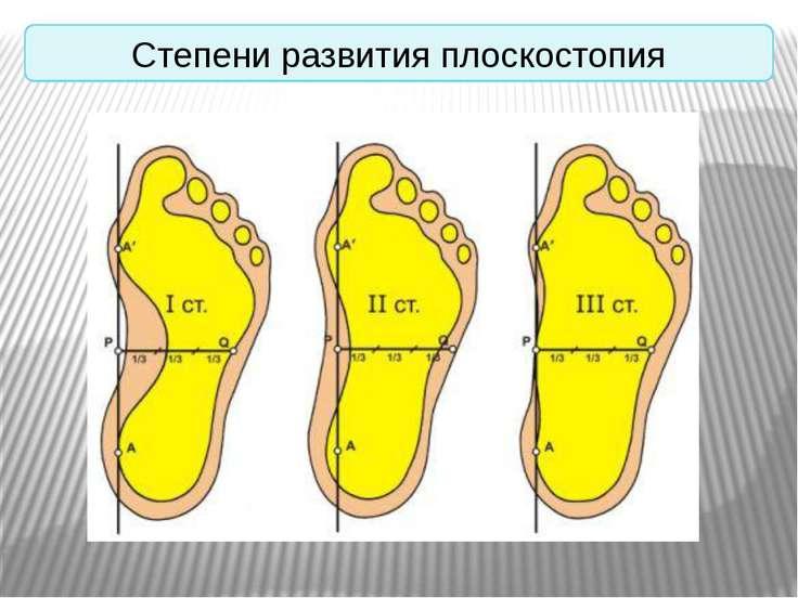 Степени развития плоскостопия
