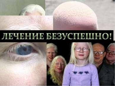 Альбинизм- нарушение аминокислотного метаболизма. Врождённое отсутствие пигме...