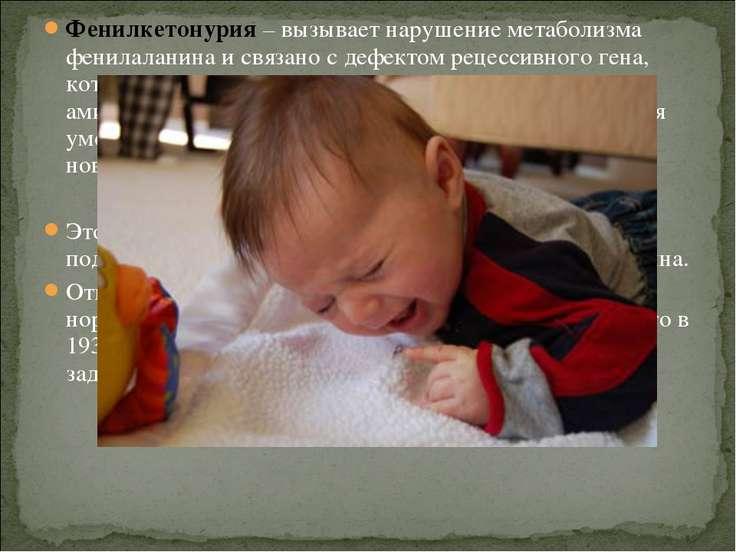 Фенилкетонурия – вызывает нарушение метаболизма фенилаланина и связано с дефе...