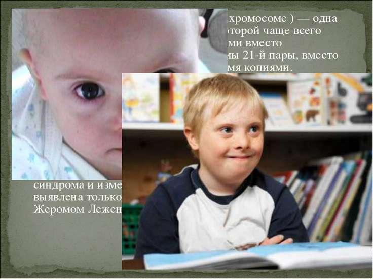 Синдром Да уна (трисомия X по 21 хромосоме ) — одна из форм геномной патологи...