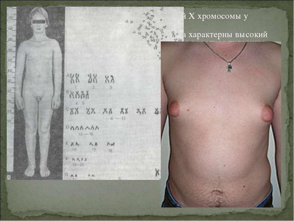 Болезнь Кляйнфельтера- наличие лишней X хромосомы у мужчин (генотип – XXY). Д...