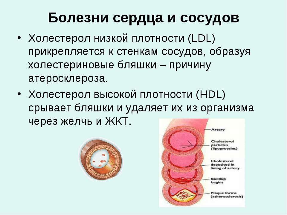 Болезни сердца и сосудов Холестерол низкой плотности (LDL) прикрепляется к ст...