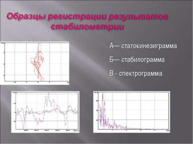 А— статокинезиграмма Б— стабилограмма В - спектрограмма