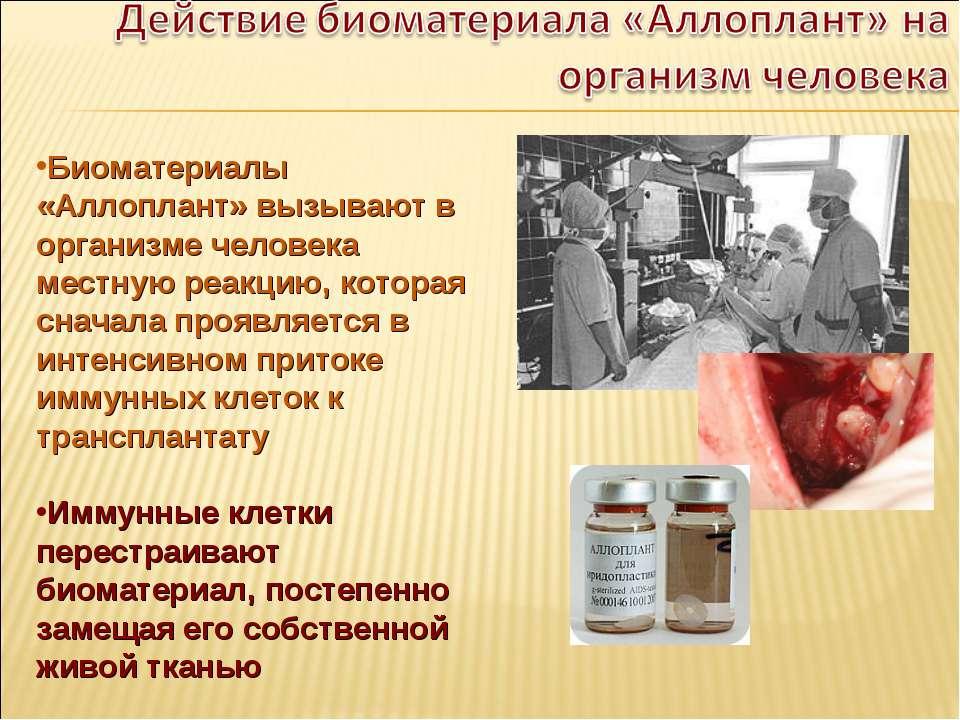 Биоматериалы «Аллоплант» вызывают в организме человека местную реакцию, котор...