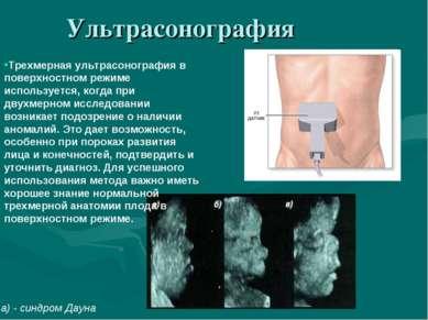 Ультрасонография a) - синдром Дауна Трехмерная ультрасонография в поверхностн...