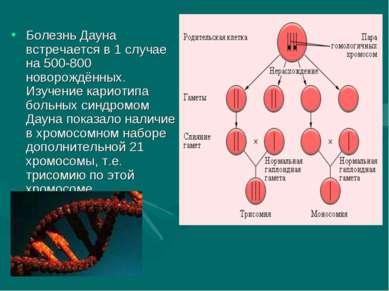 Болезнь Дауна встречается в 1 случае на 500-800 новорождённых. Изучение карио...