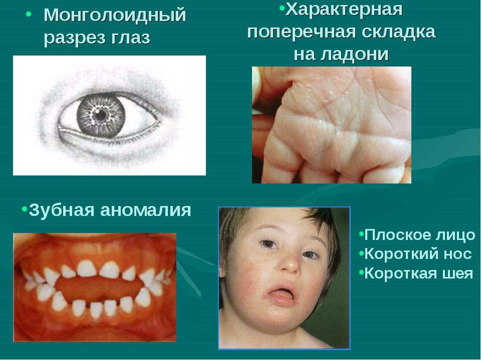 Характерная поперечная складка на ладони Монголоидный разрез глаз Зубная аном...