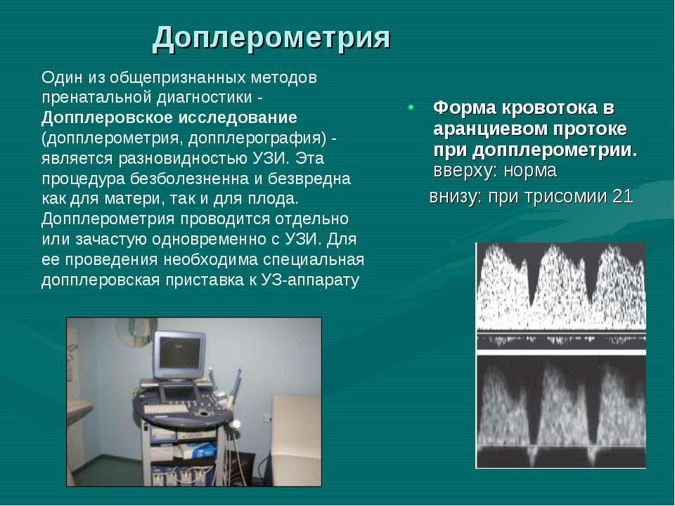 Форма кровотока в аранциевом протоке при допплерометрии. вверху: норма внизу:...