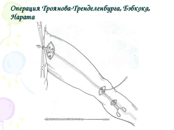 Операция Троянова-Тренделенбурга, Бэбкока, Нарата