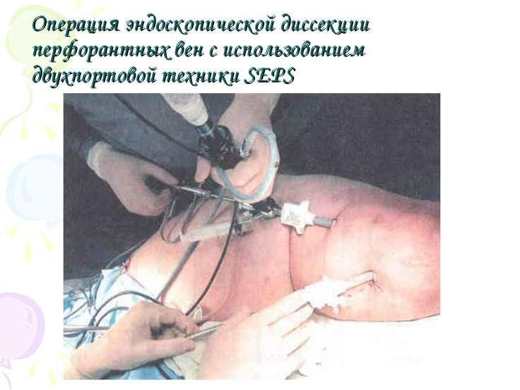 Операция эндоскопической диссекции перфорантных вен с использованием двухпорт...