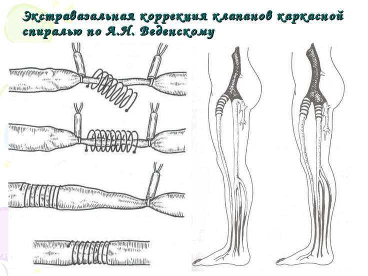 Экстравазальная коррекция клапанов каркасной спиралью по А.Н. Веденскому