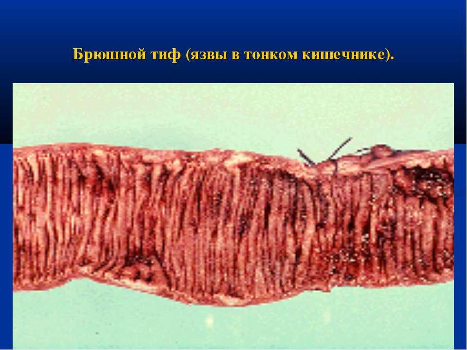 Брюшной тиф (язвы в тонком кишечнике).