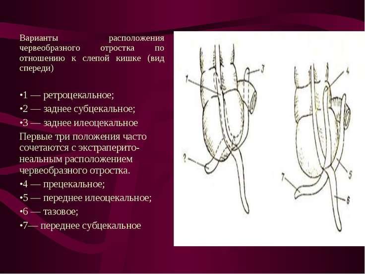 Варианты расположения червеобразного отростка по отношению к слепой кишке (ви...