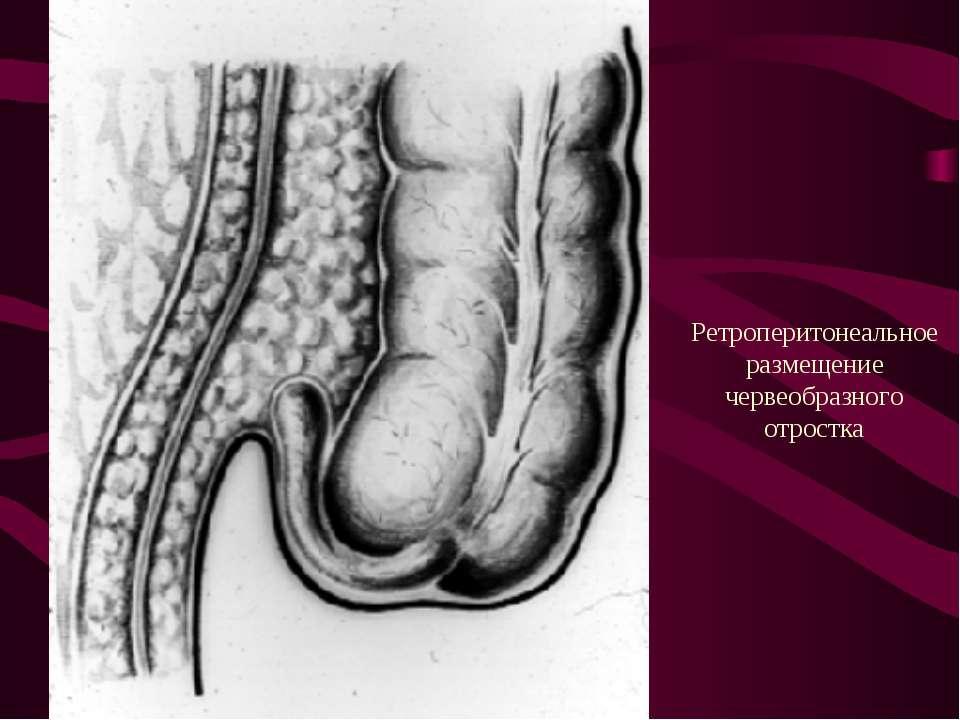 Ретроперитонеальное размещение червеобразного отростка