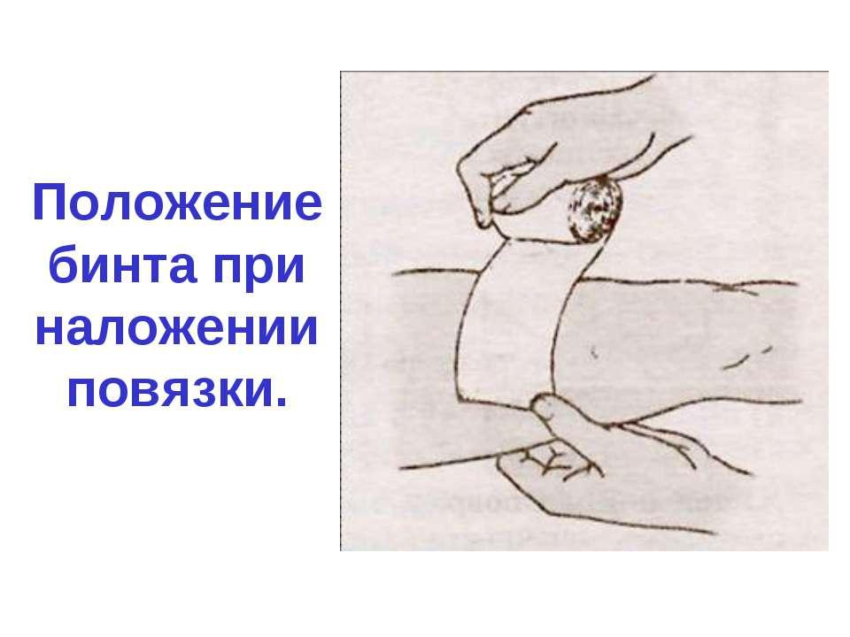 Положение бинта при наложении повязки.
