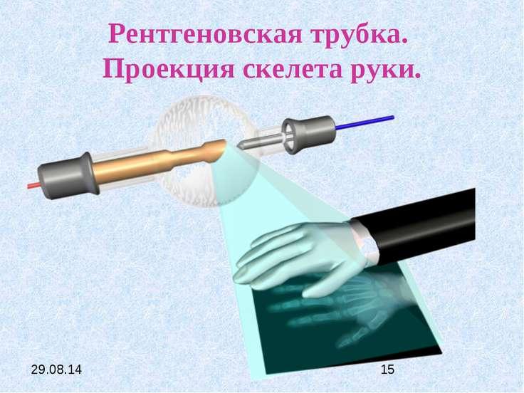 Рентгеновская трубка. Проекция скелета руки.