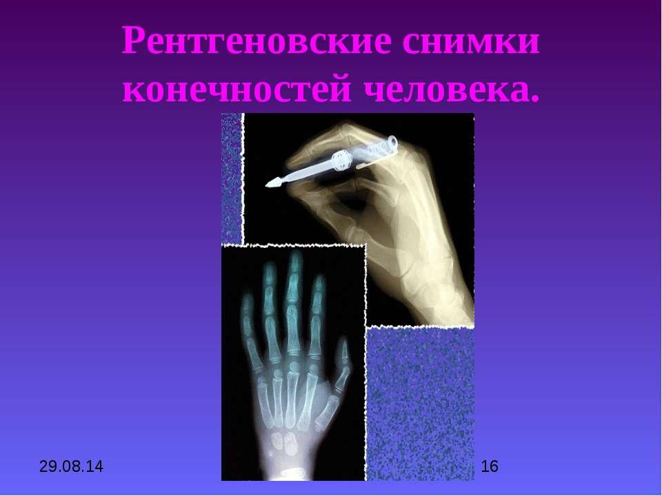 Рентгеновские снимки конечностей человека.
