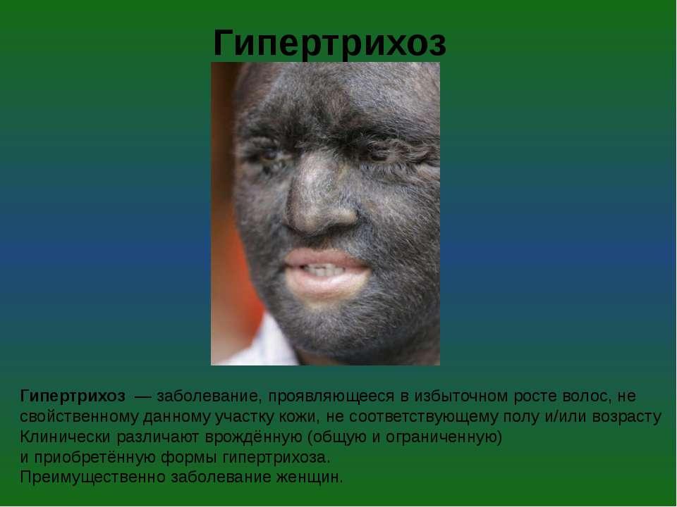 Гипертрихоз— заболевание, проявляющееся в избыточном ростеволос, не свойст...