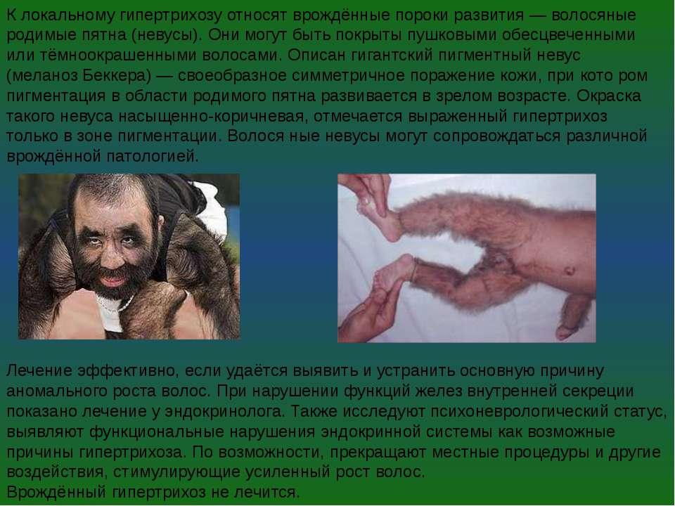 К локальному гипертрихозу относят врождённые пороки развития— волосяные роди...