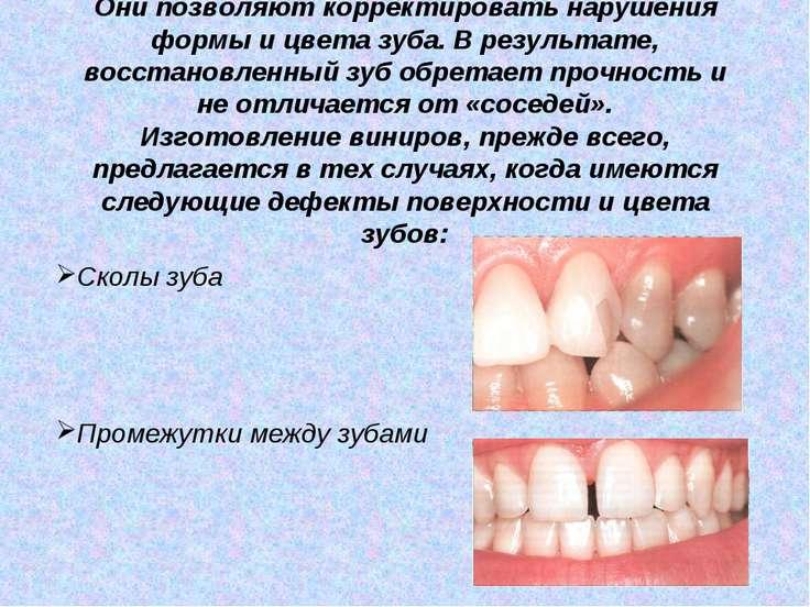 Они позволяют корректировать нарушения формы и цвета зуба. В результате, восс...