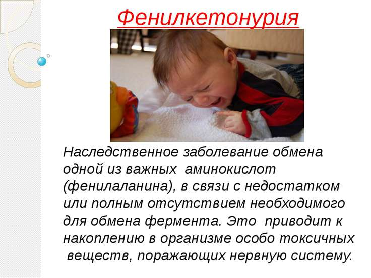Фенилкетонурия Наследственное заболевание обмена одной из важных аминокислот ...
