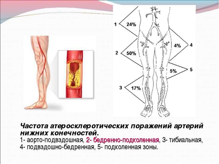 Частота атеросклеротических поражений артерий нижних конечностей. 1- аорто-по...