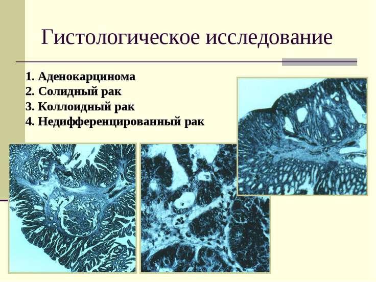 Гистологическое исследование 1. Аденокарцинома 2. Солидный рак 3. Коллоидный ...