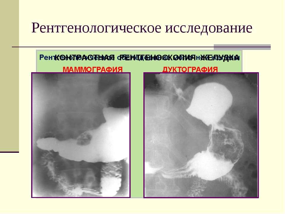 Рентгенологическое исследование КОНТРАСТНАЯ РЕНТГЕНОСКОПИЯ ЖЕЛУДКА