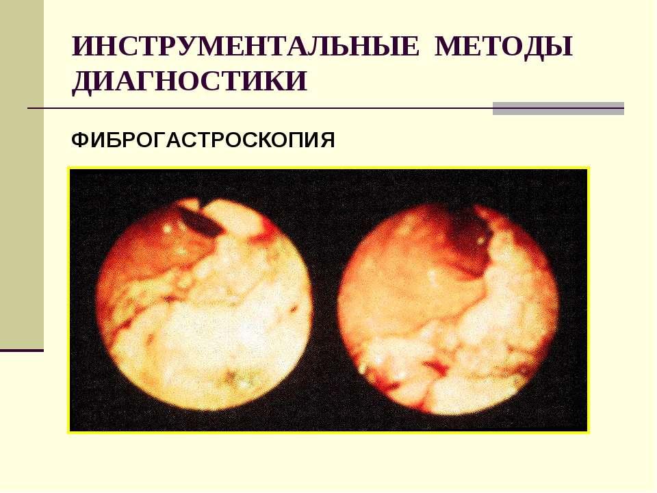 ИНСТРУМЕНТАЛЬНЫЕ МЕТОДЫ ДИАГНОСТИКИ ФИБРОГАСТРОСКОПИЯ