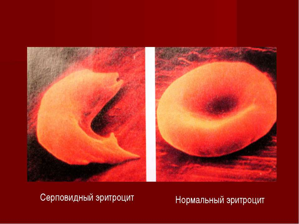 Серповидный эритроцит Нормальный эритроцит