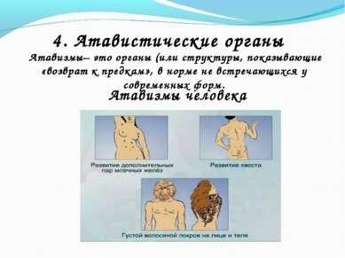 4. Атавистические органы Атавизмы– это органы (или структуры, показывающие «в...