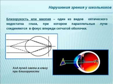Нарушения зрения у школьников Близорукость или миопия – один из видов оптичес...