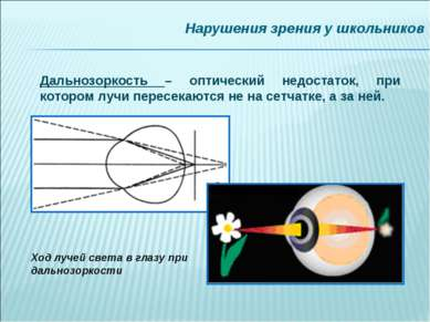 Нарушения зрения у школьников Дальнозоркость – оптический недостаток, при кот...