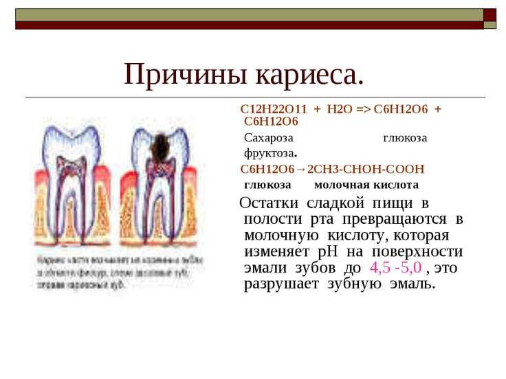 Причины кариеса. С12Н22О11 + Н2О => C6H12O6 + C6H12O6 Сахароза глюкоза фрукто...
