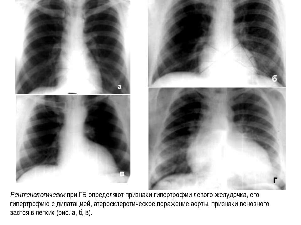 Рентгенологически при ГБ определяют признаки гипертрофии левого желудочка, ег...