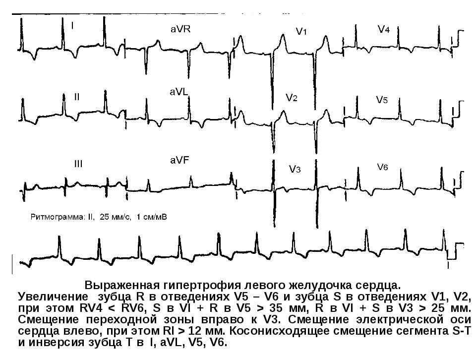 Выраженная гипертрофия левого желудочка сердца. Увеличение зубца R в отведени...