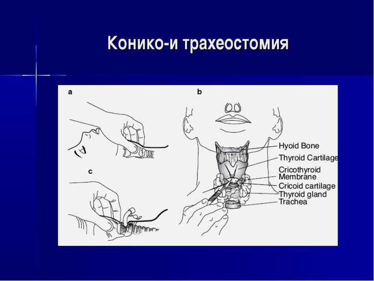 Конико-и трахеостомия