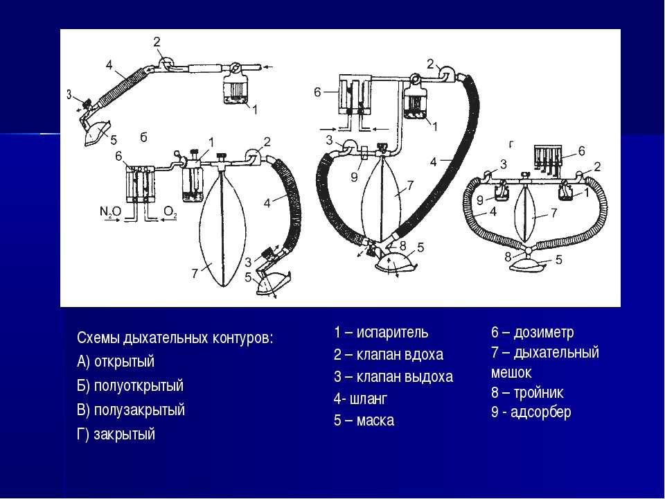 Схемы дыхательных контуров: А) открытый Б) полуоткрытый В) полузакрытый Г) за...