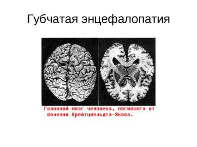 Губчатая энцефалопатия