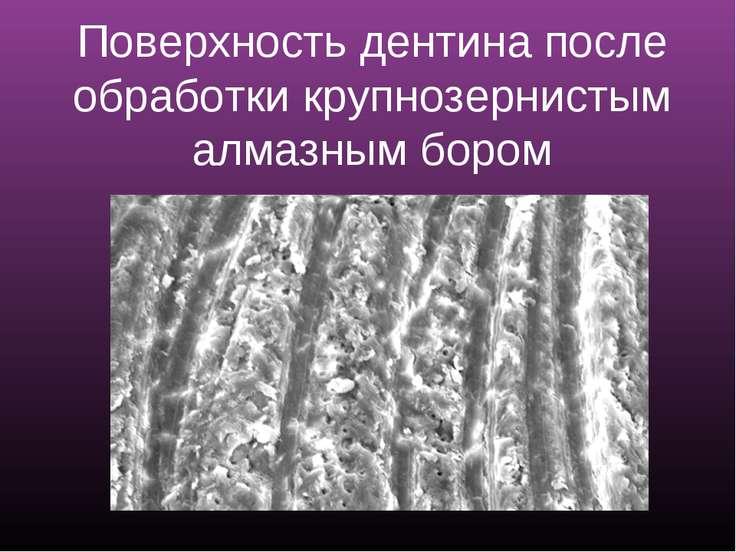 Поверхность дентина после обработки крупнозернистым алмазным бором