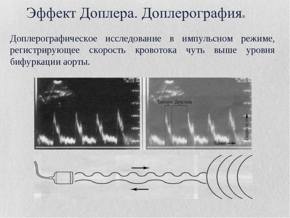 Доплерографическое исследование в импульсном режиме, регистрирующее скорость ...
