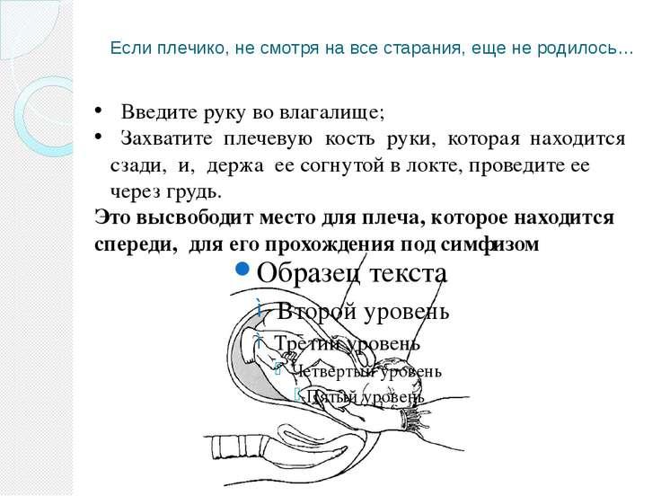 Если плечико, не смотря на все старания, еще не родилось… Введите руку во вла...