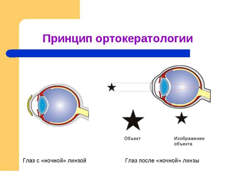 Принцип ортокератологии Глаз с «ночной» линзой Глаз после «ночной» линзы