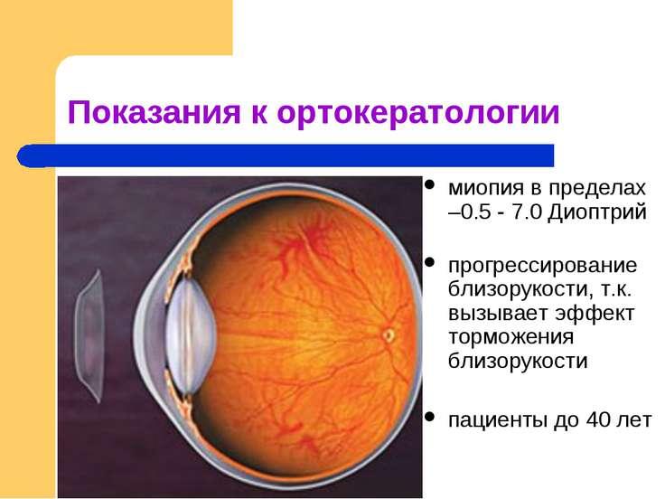 Показания к ортокератологии миопия в пределах –0.5 - 7.0 Диоптрий прогрессиро...