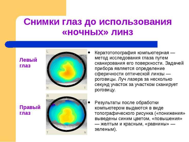 Снимки глаз до использования «ночных» линз Кератотопография компьютерная — ме...