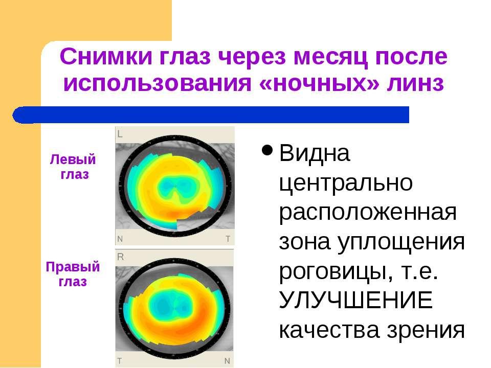 Снимки глаз через месяц после использования «ночных» линз Видна центрально ра...