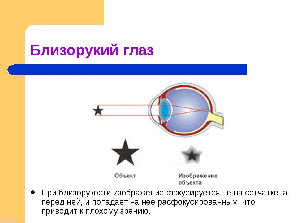 Близорукий глаз При близорукости изображение фокусируется не на сетчатке, а п...