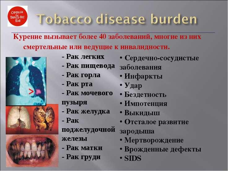Курение вызывает более 40 заболеваний, многие из них смертельные или ведущие ...