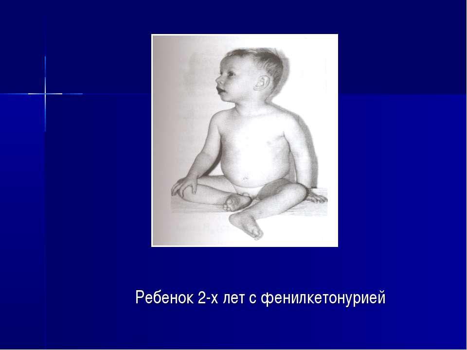 Ребенок 2-х лет с фенилкетонурией