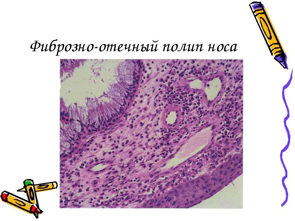 Фиброзно-отечный полип носа